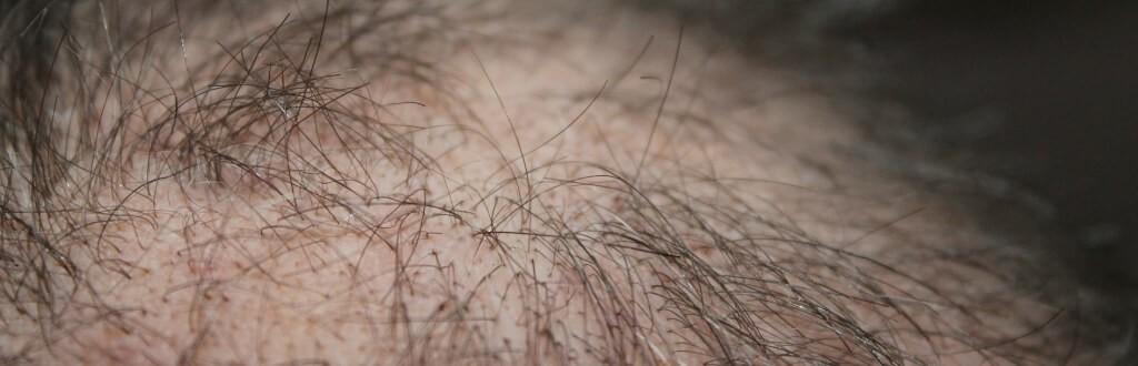 Juckende Kopfhaut Haarausfall: was tun?